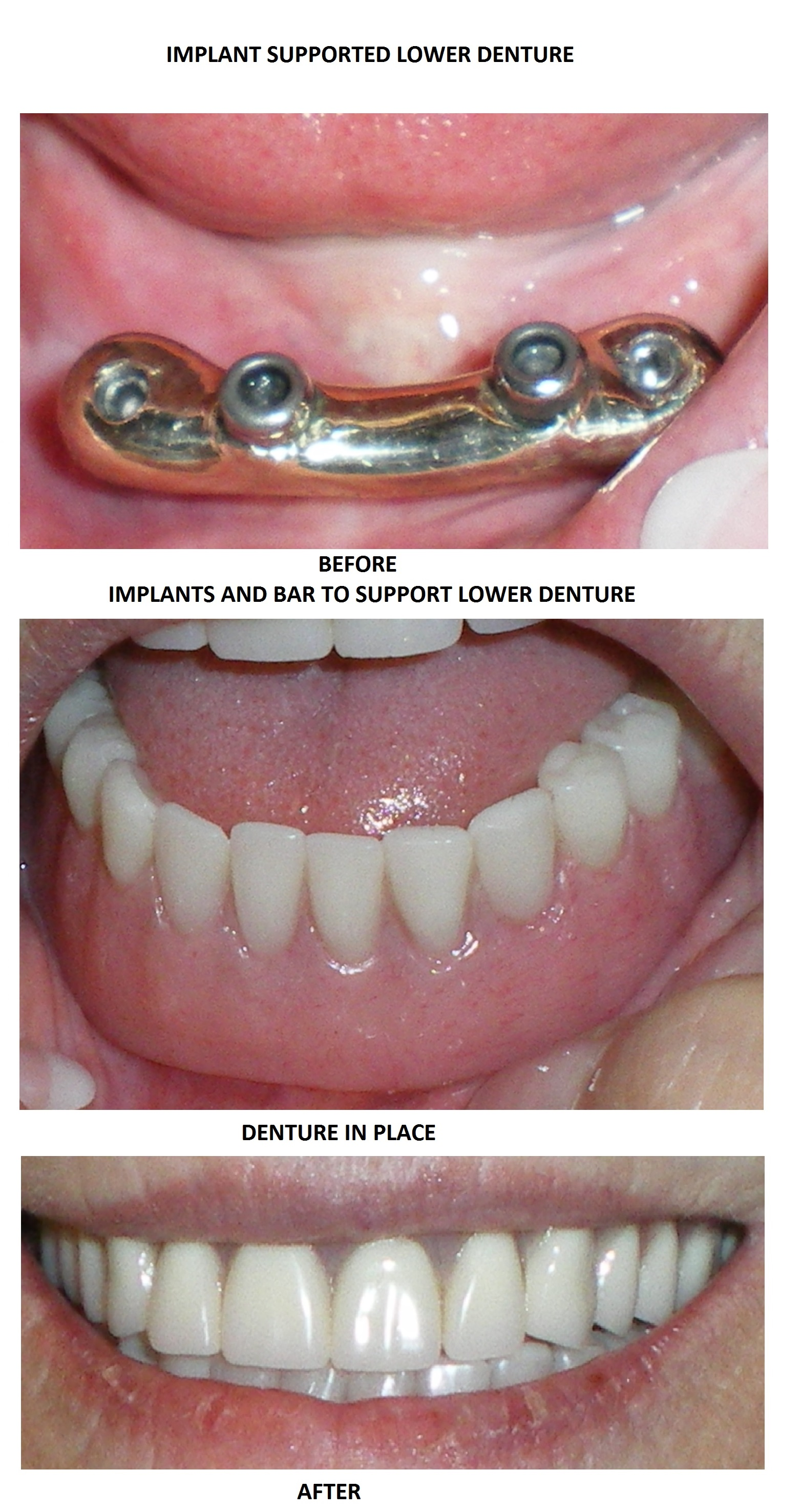 IMPLANT SUPPORTED LOWER DENTURE